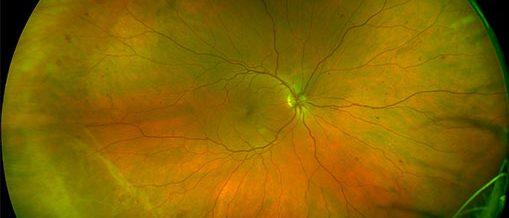 retinal image of diabetes
