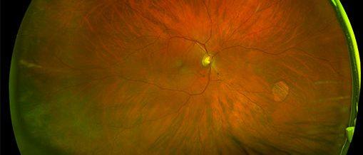 retinal image of glaucoma