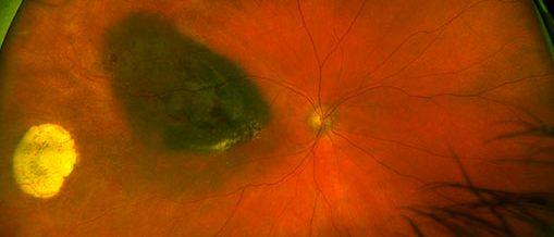 retinal image of melanoma