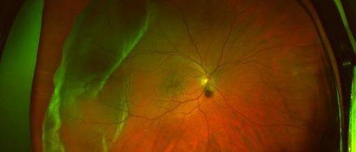 retinal image of detachment