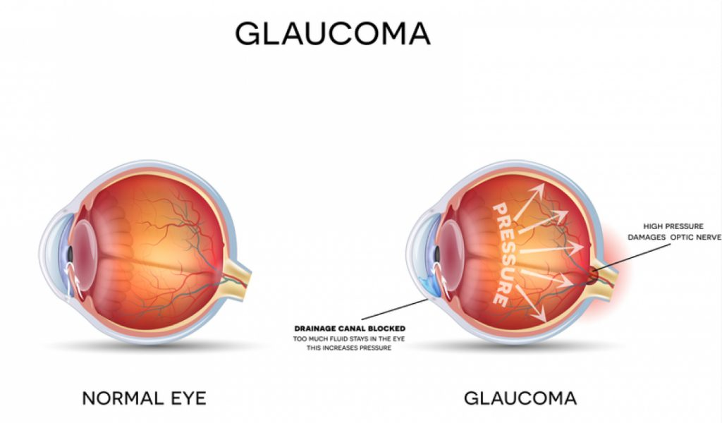 Diagram comparison of a normal eye vs an eye with glaucoma
