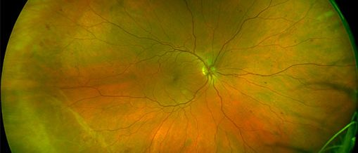 retinal image of diabetes