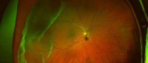 retinal image of detachment